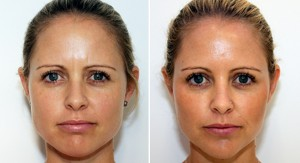Face slimming tips